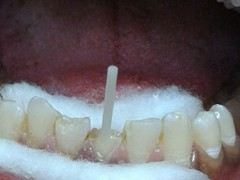 Best dental implant centre in bhopal